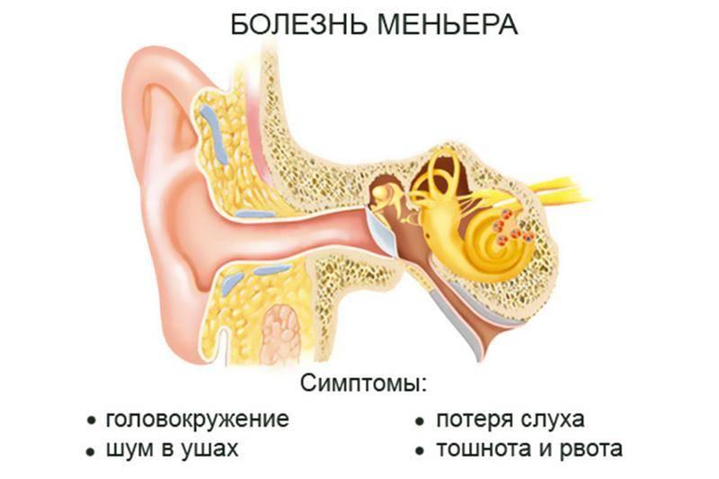 Болезнь меньера – что за заболевание? синдром меньера – симптомы и лечение