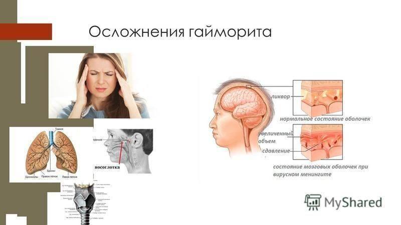 Что такое синусит, причины, симптомы и лечение у взрослых