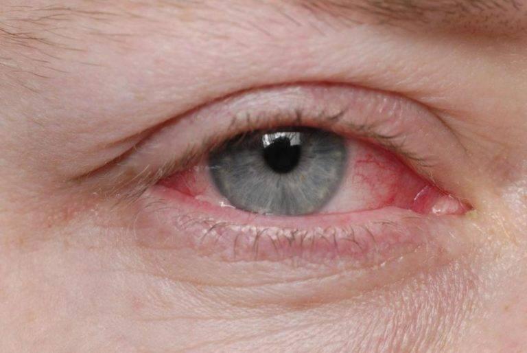 Что делать, если в глаза попала извёстка, соринка, железная стружка или просто «надул ветер»