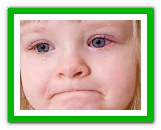 конъюнктивит у детей комаровский