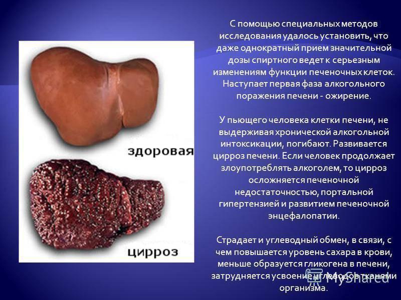 признаки ожирения печени