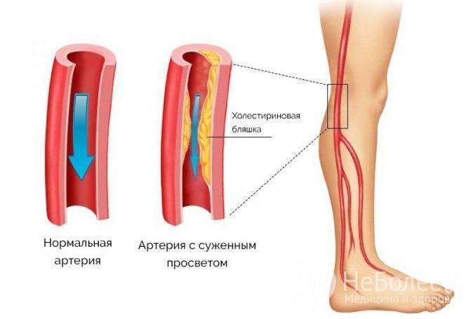 Симптоматика и лечение нестенозирующего атеросклероза