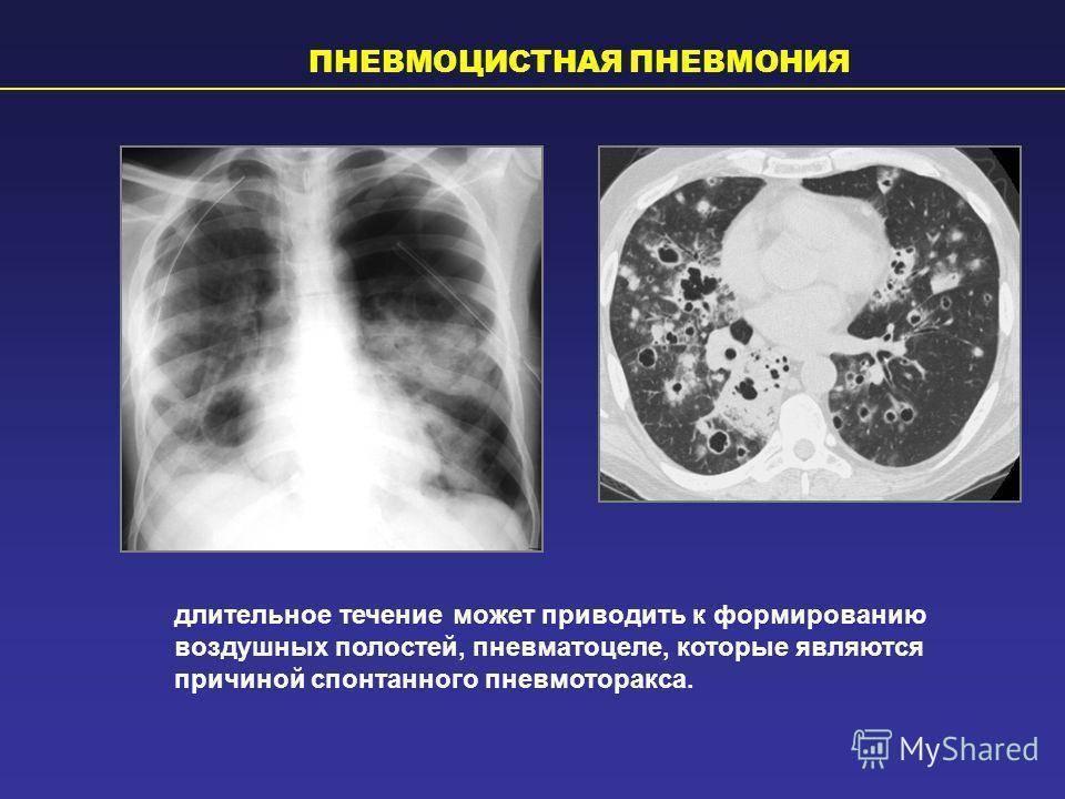пневмоцистная пневмония рентгенологическая картина