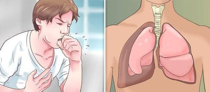 мокрый кашель