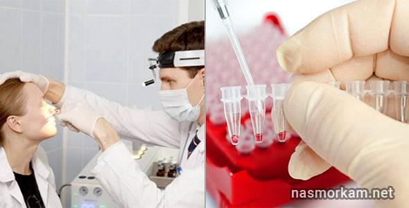 Ватакаскивать из носа сгустки крови много