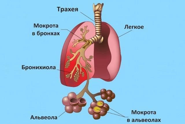 трахейный кашель