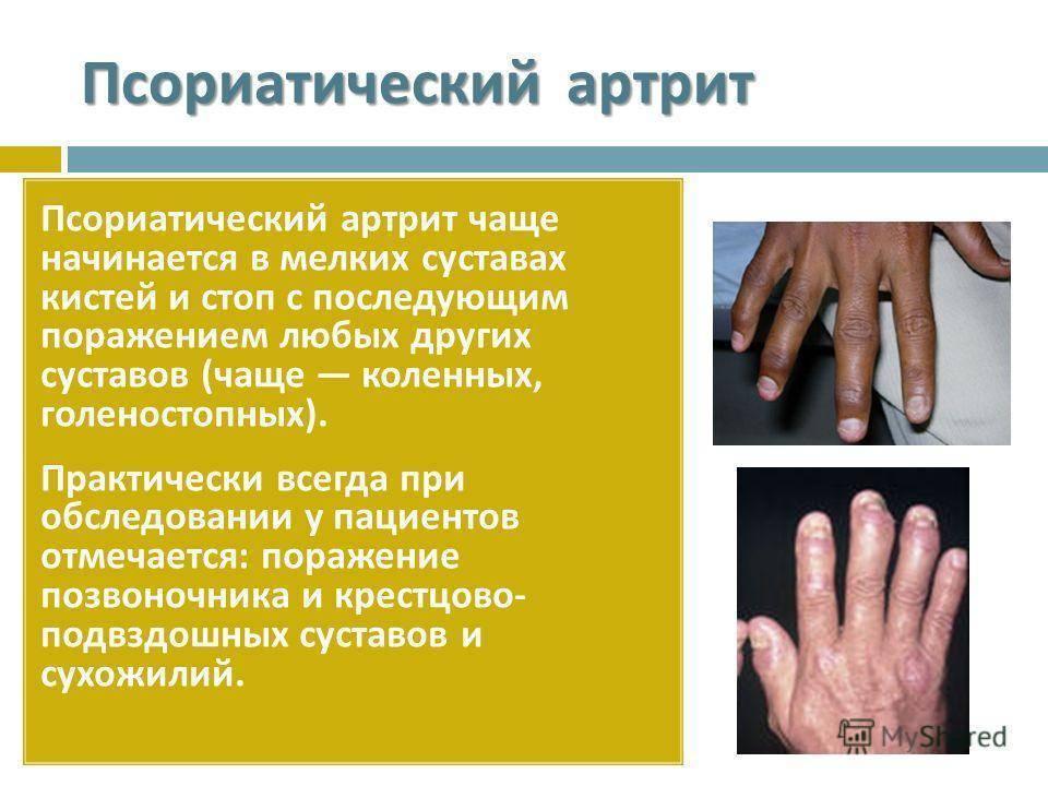 псориаз суставов лечение