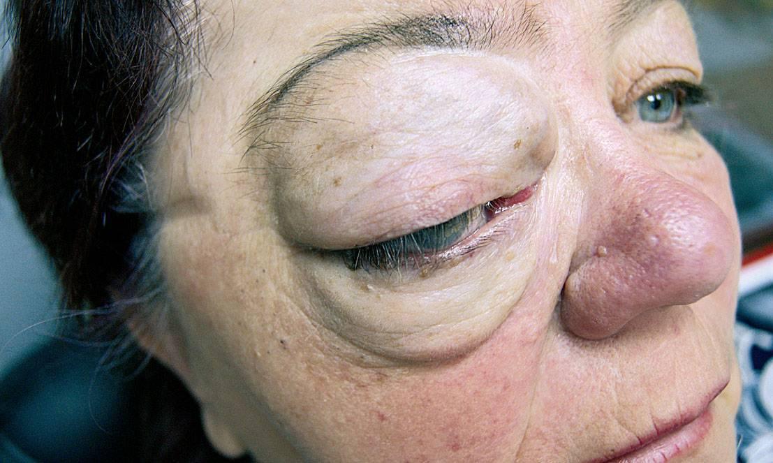 рак глазного яблока