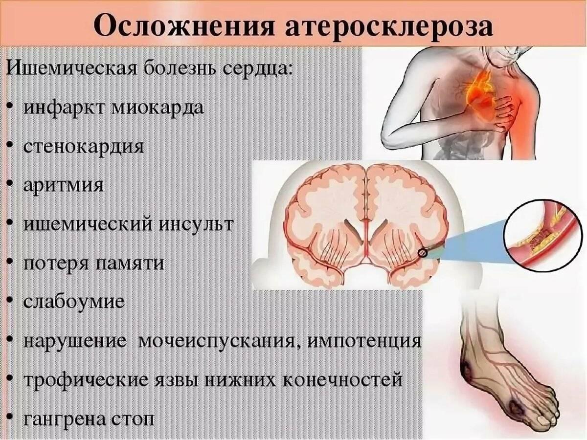 Кто лечит атеросклероз? выбираем правильного врача