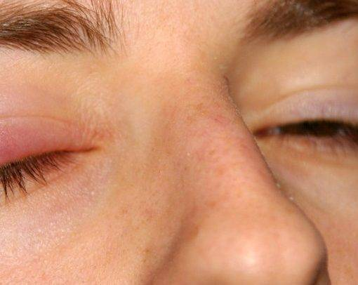 Чешется в уголках глаз около переносицы: почему и что делать