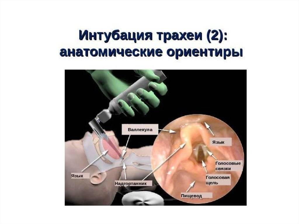 Интубация трахеи — википедия