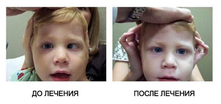операция по исправлению косоглазия у детей