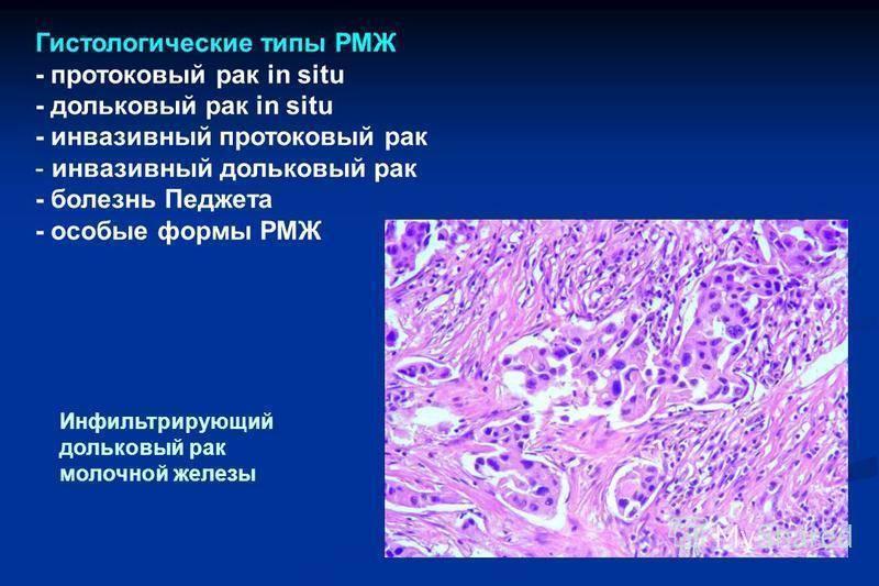 Инфильтрирующий протоковый рак молочной железы 2 степени лечение