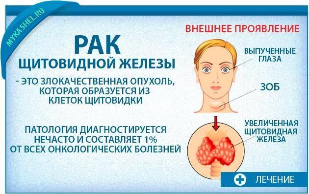 кашель из за щитовидной железы