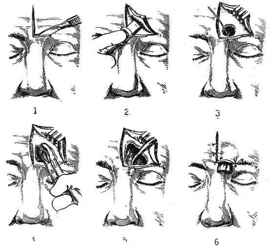 Как и зачем делается прокол лобной пазухи при фронтите?