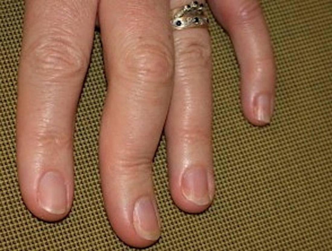 Артропатический псориаз — причины, лечение, симптомы