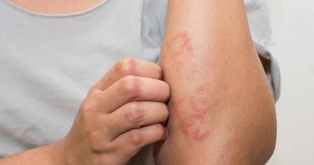 аллергический дерматит из за чего появляется