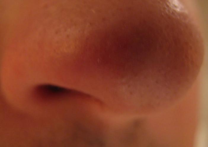 фурункул в носу симптомы
