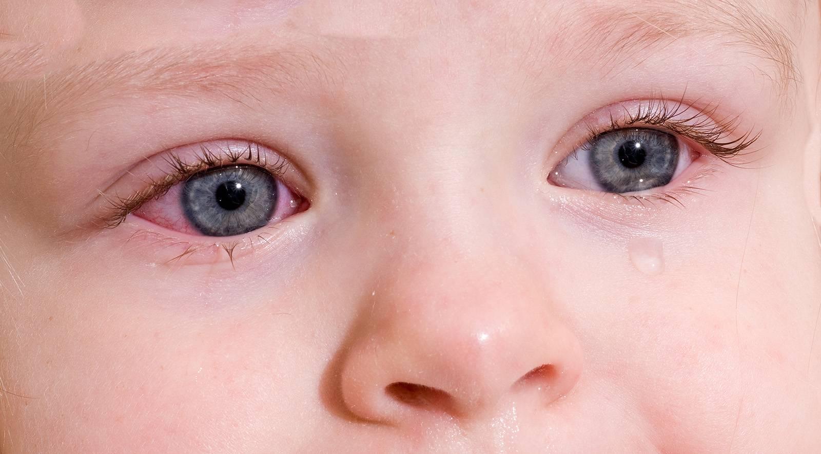 детские болезни глаз