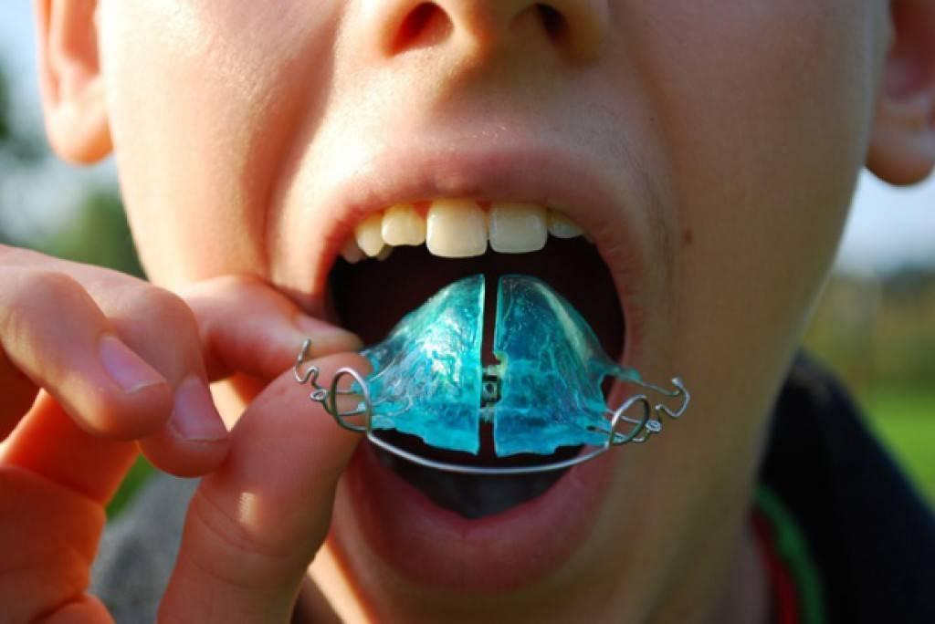 пластинка на зубы