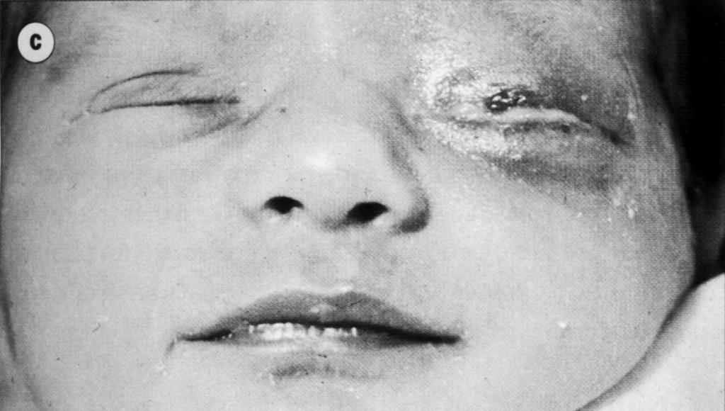 Хламидии у детей симптомы и лечение