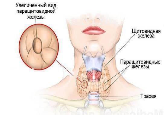 Как болит щитовидка: симптомы болей в горле при щитовидной железе
