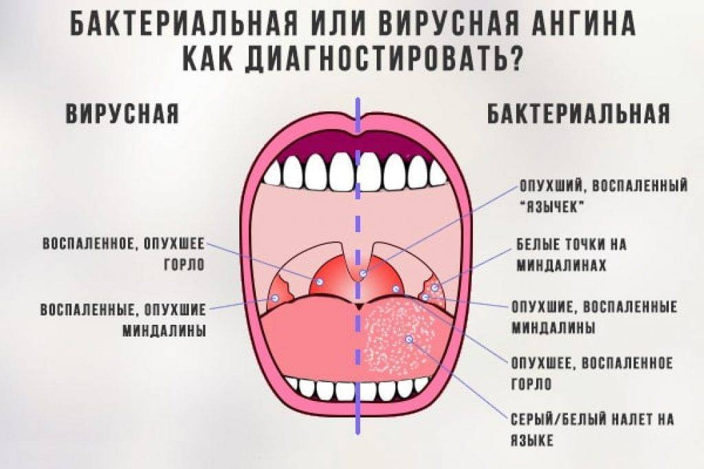 Грибковая инфекция в горле у ребенка или взрослого: симптомы и лечение