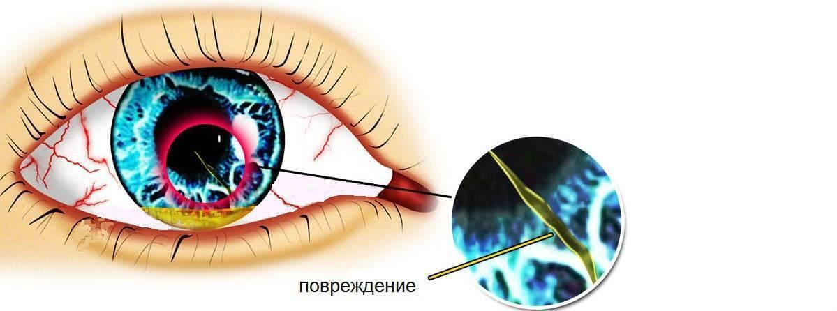 травма роговицы глаза последствия