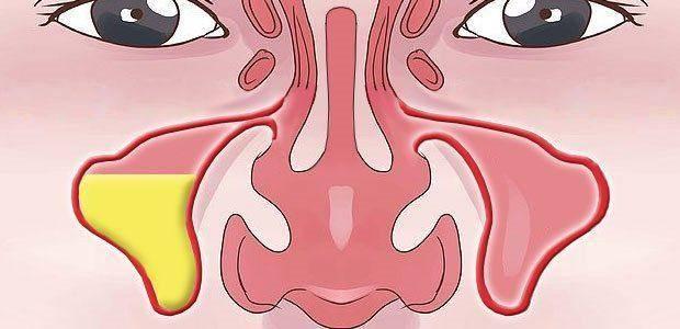 Хронический синусит – симптомы, лечение у взрослых