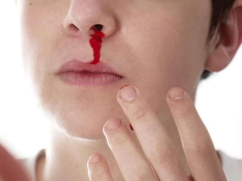 носовое кровотечение причины у пожилых