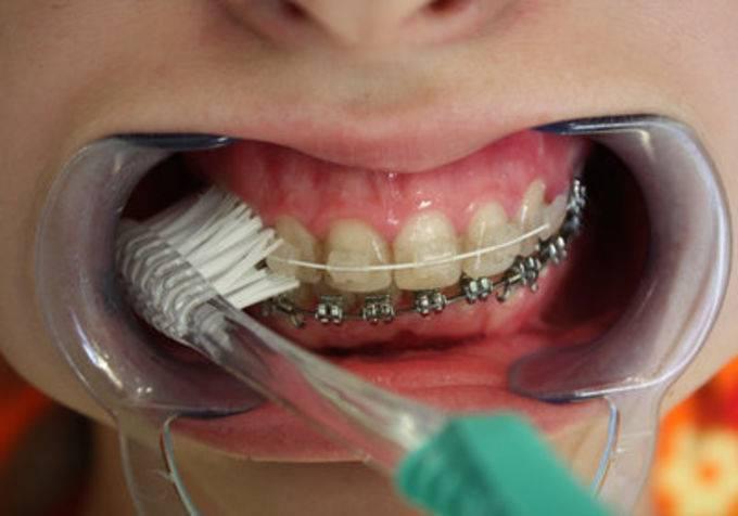 Паста для очищения зубов и брекетов