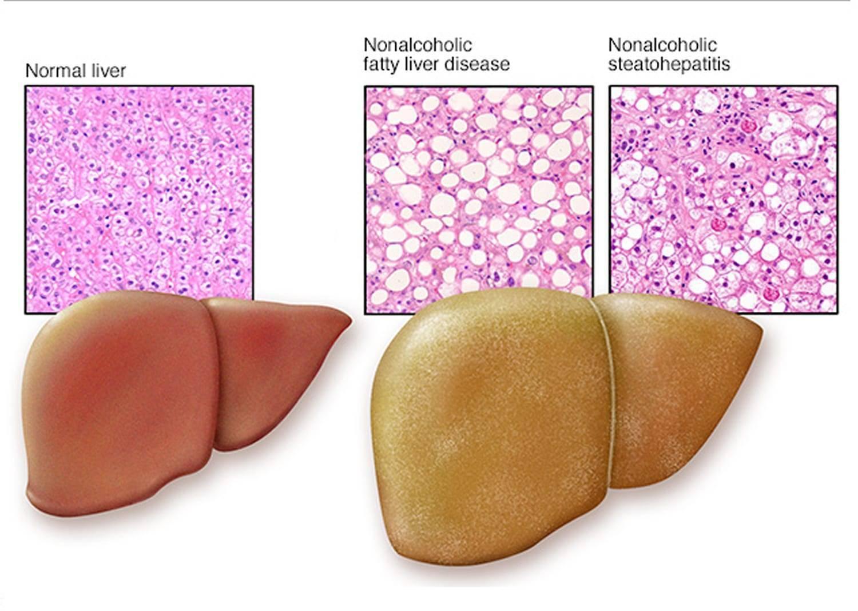 лекарства от ожирения печени