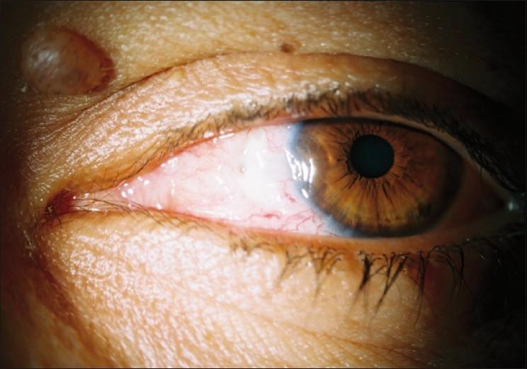 Удаление птеригиума – капли после операции по удалению болезни