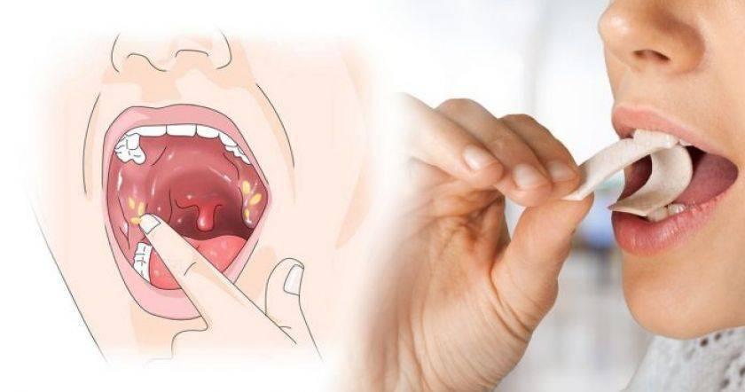 как удаляют миндалины