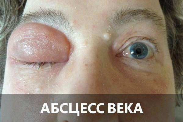 От чего болит под веком глаза