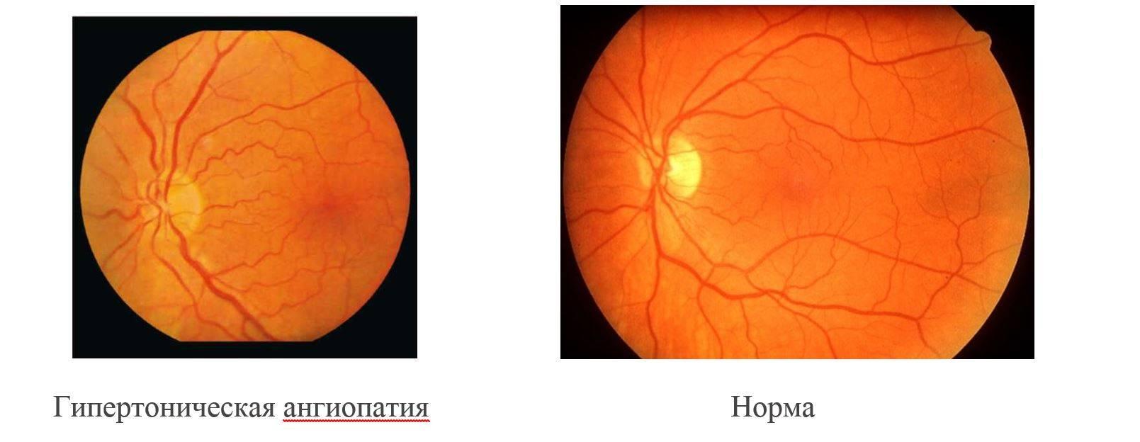 Ангиосклероз сетчатки глаза, диагностика и лечение заболевания