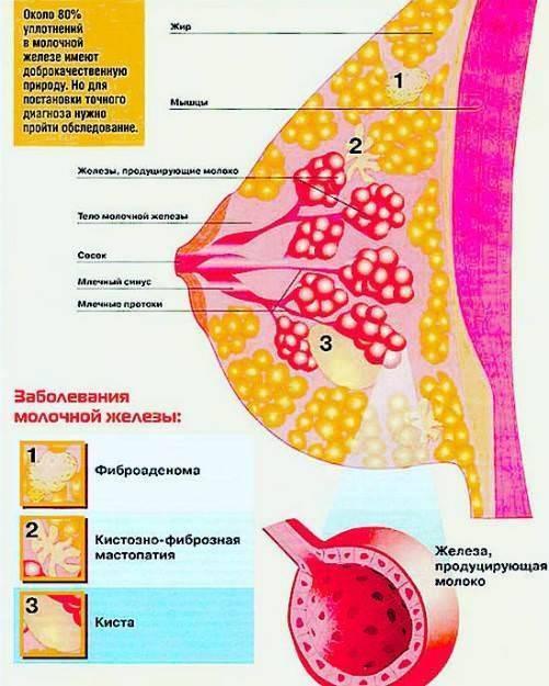 Как осуществляется лечение диффузной фиброзно-кистозной мастопатии? народные средства и медикаменты