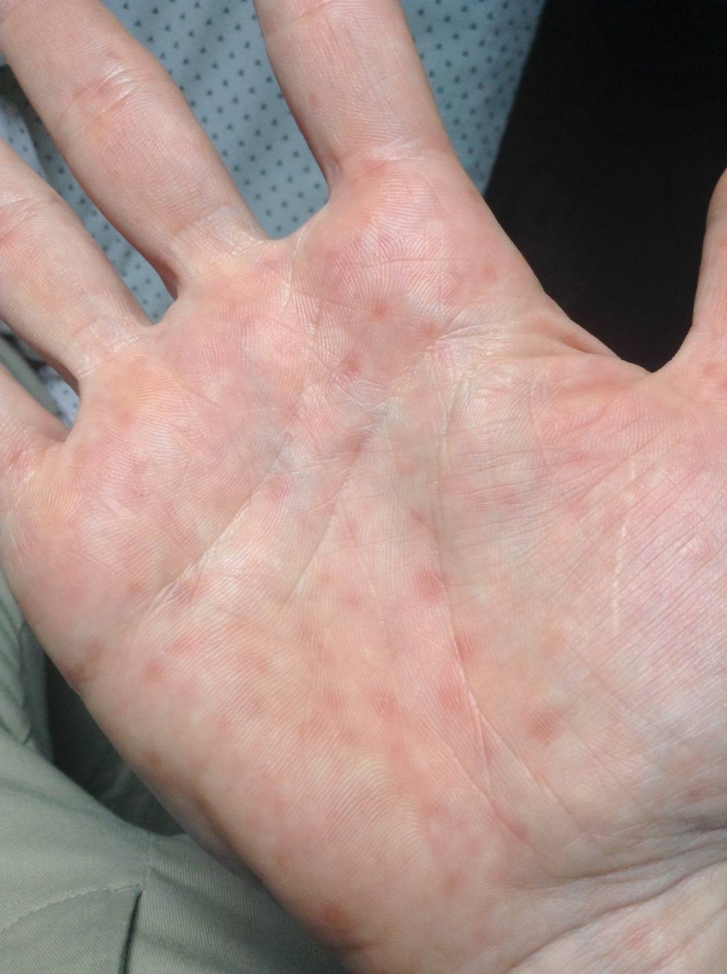 Чесоточный клещ у человека. фото, симптомы, лечение в домашних условиях