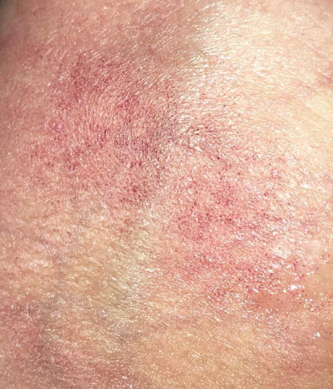 паховый дерматит у мужчин
