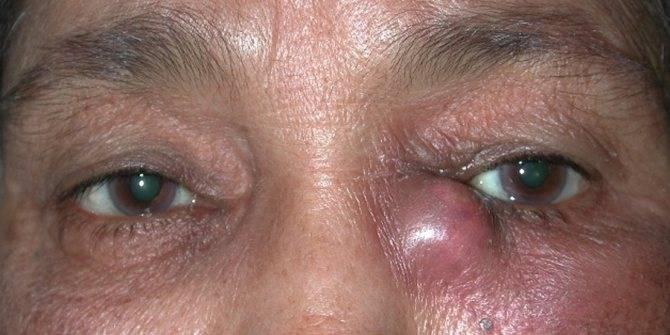 Глаза красные и болят и слезятся глаза