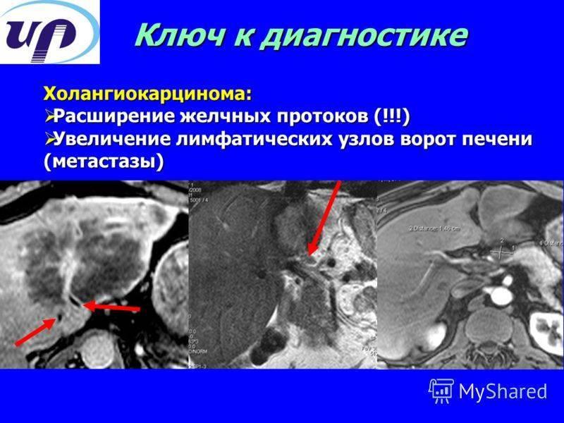 Причины и симптомы увеличения лимфоузлов в печени