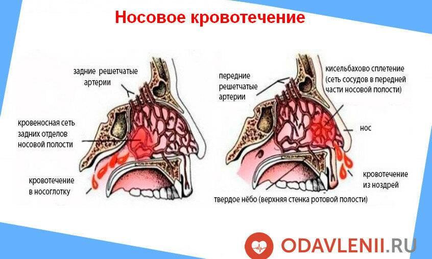болит голова и кровь из носа причины
