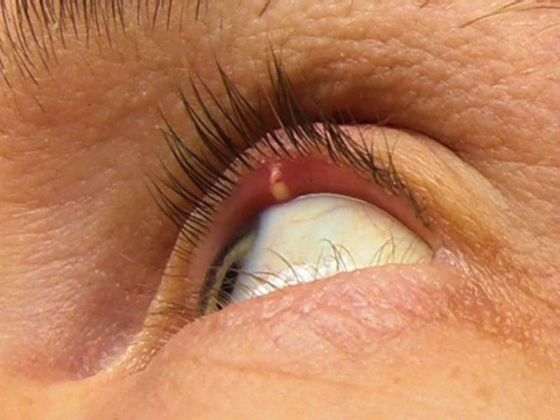 как избавиться от ячменя на глазу на начальной стадии