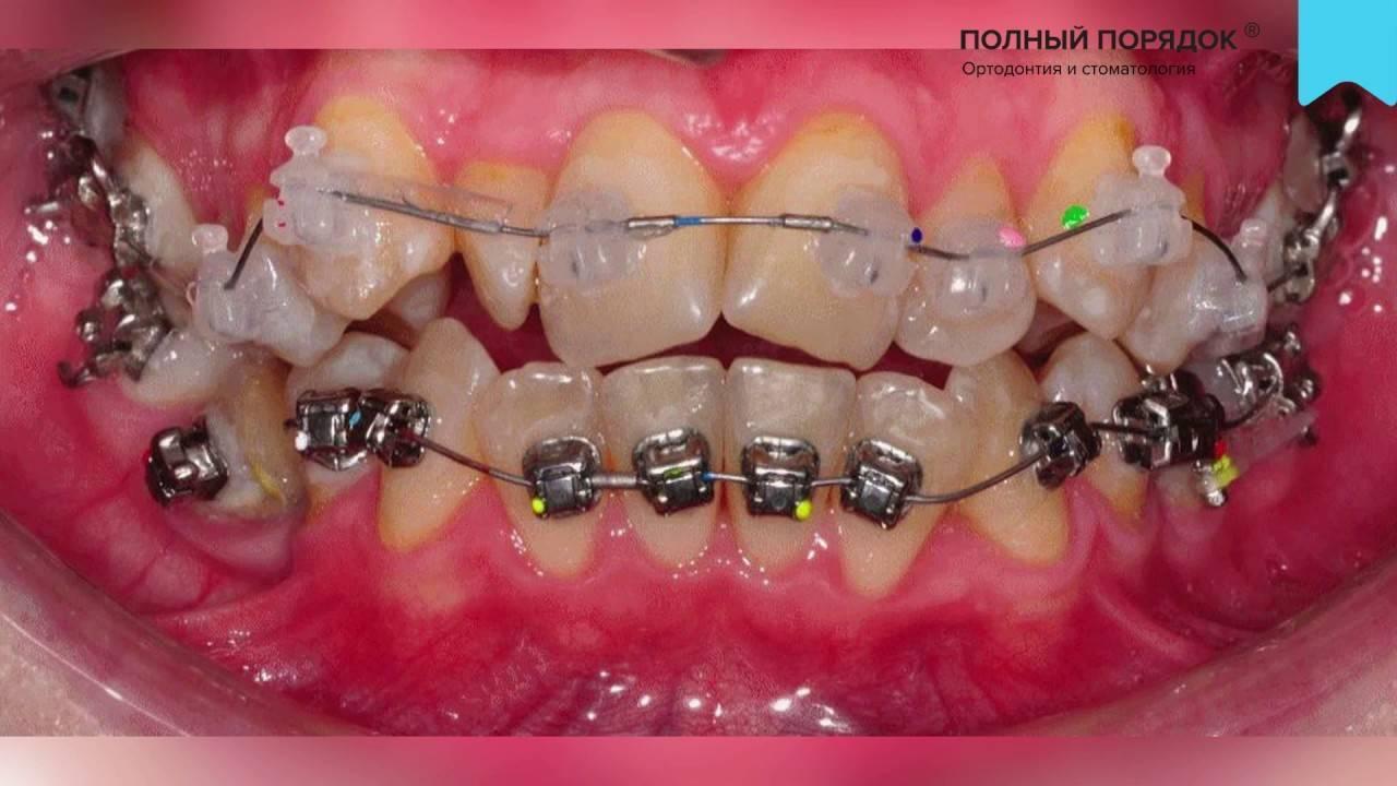 Последствия брекетов — осложнения после ношения зубных конструкций