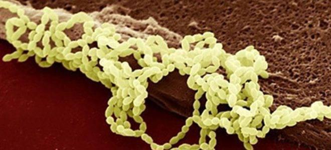 как избавиться от стрептококка в горле