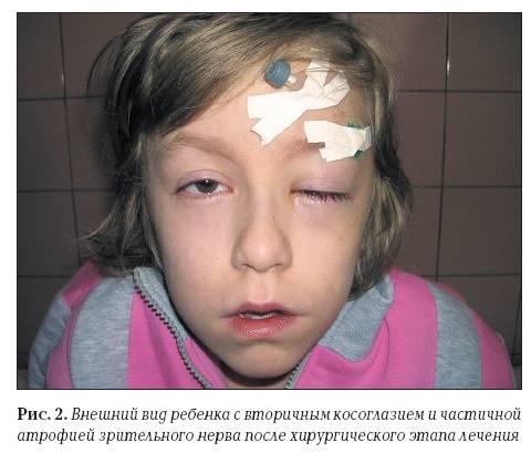 Особенности лечения косоглазия у детей