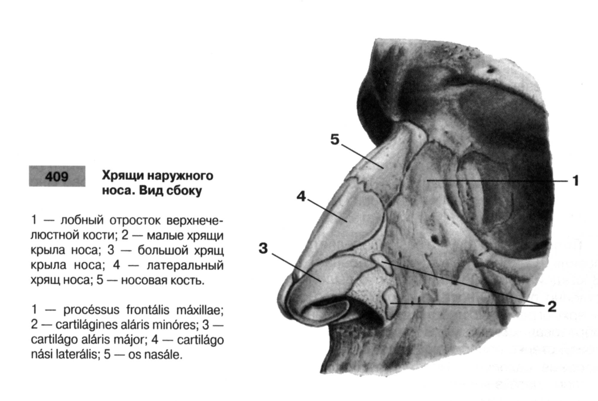 Синдром пустого носа - лор казань