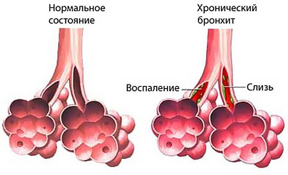 Трахеит, бронхит — это трахеобронхит, симптомы и лечение
