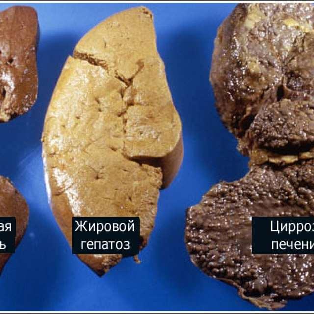 Чем опасен гепатоз печени и как его лечить?