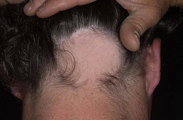 Диета при псориазе волосистой части головы: что можно , а что нельзя при данном заболевании?